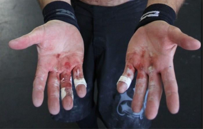El crossfit causa callos, heridas y ampollas en las manos